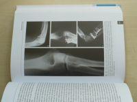 Loketní kloub - Ortopedie a traumatologie (2012)