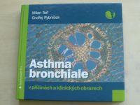 Teřl, Rybníček - Asthma bronchiale v příčinách a klinických obrazech (2008)