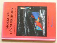 Polívka, Ševčík - Mozkové cévní příhody (2000)