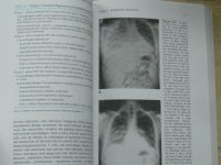 Ali, Summer, Levizky - Pulmonary Pathopsychology (1999)
